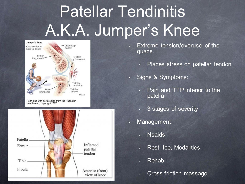 how to fix patellar tendon pain