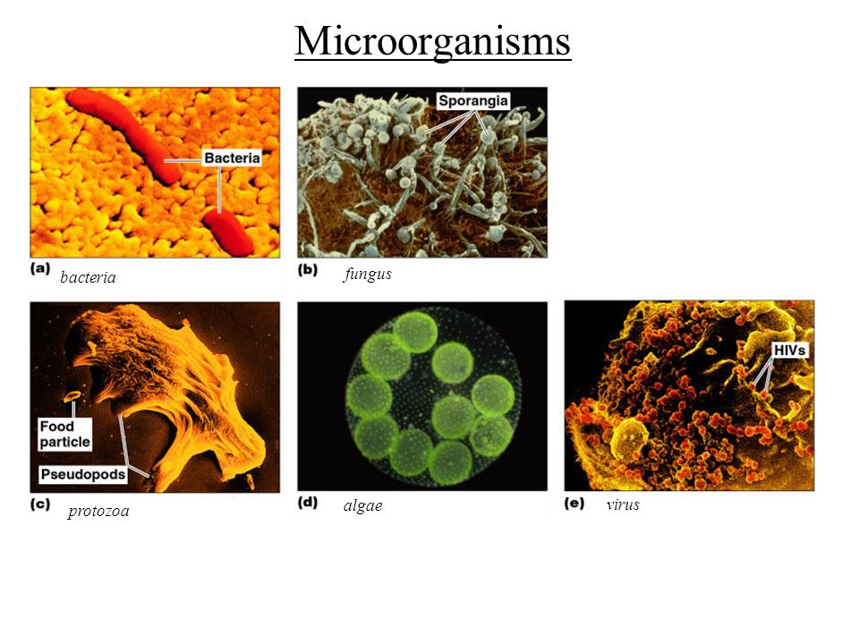 microbiology bacteria and microorganisms What are bacteria find out about the different groups of bacteria, how they reproduce and their survival skills.