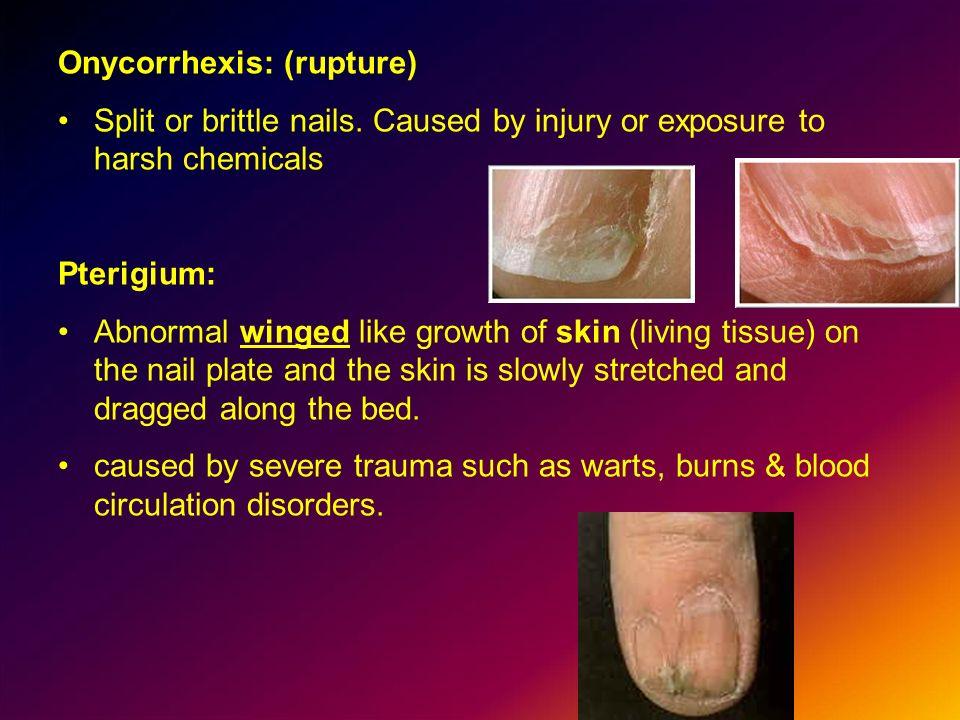 Onycorrhexis: (rupture)