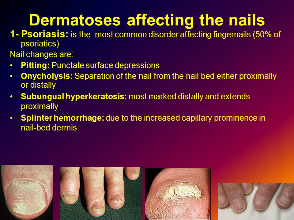 Dermatoses affecting the nails