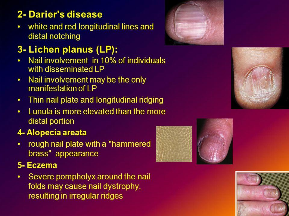 2- Darier s disease 3- Lichen planus (LP):