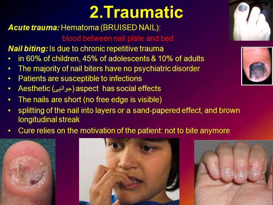 2.Traumatic Acute trauma: Hematoma (BRUISED NAIL):
