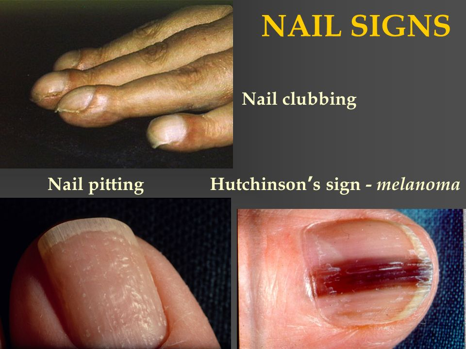 Melanoma Nail Disease - Nail Ftempo