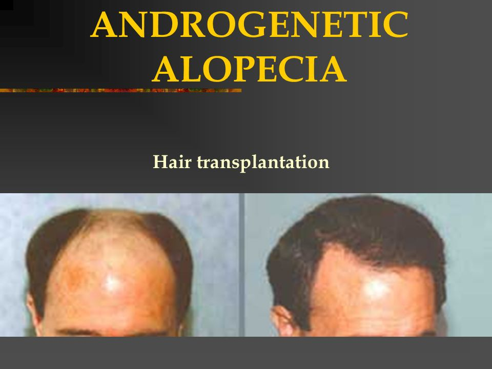 Diseases of the hair nails ppt video online download 5 androgenetic alopecia urmus Choice Image