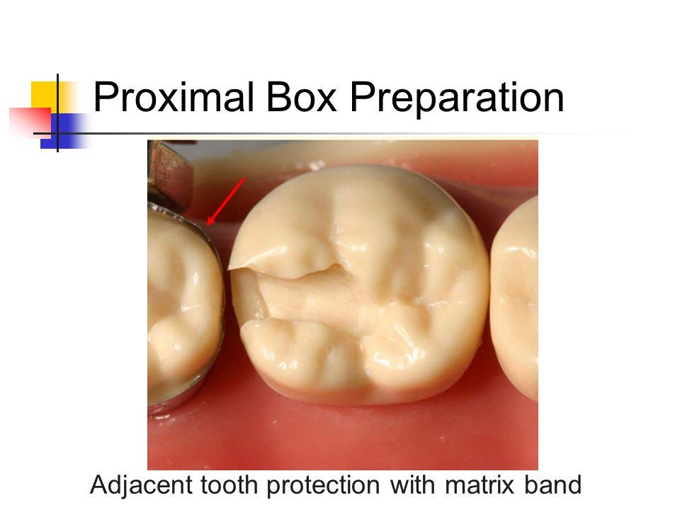Proximal Box Preparation