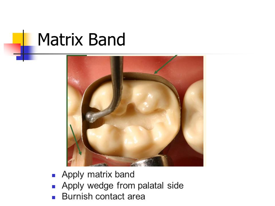 Matrix Band Apply matrix band Apply wedge from palatal side