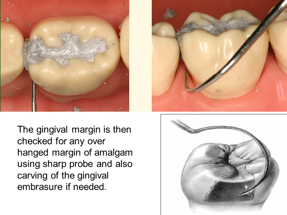 The gingival margin is then checked for any over hanged margin of amalgam using sharp probe and also carving of the gingival embrasure if needed.