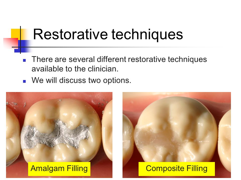 Restorative techniques