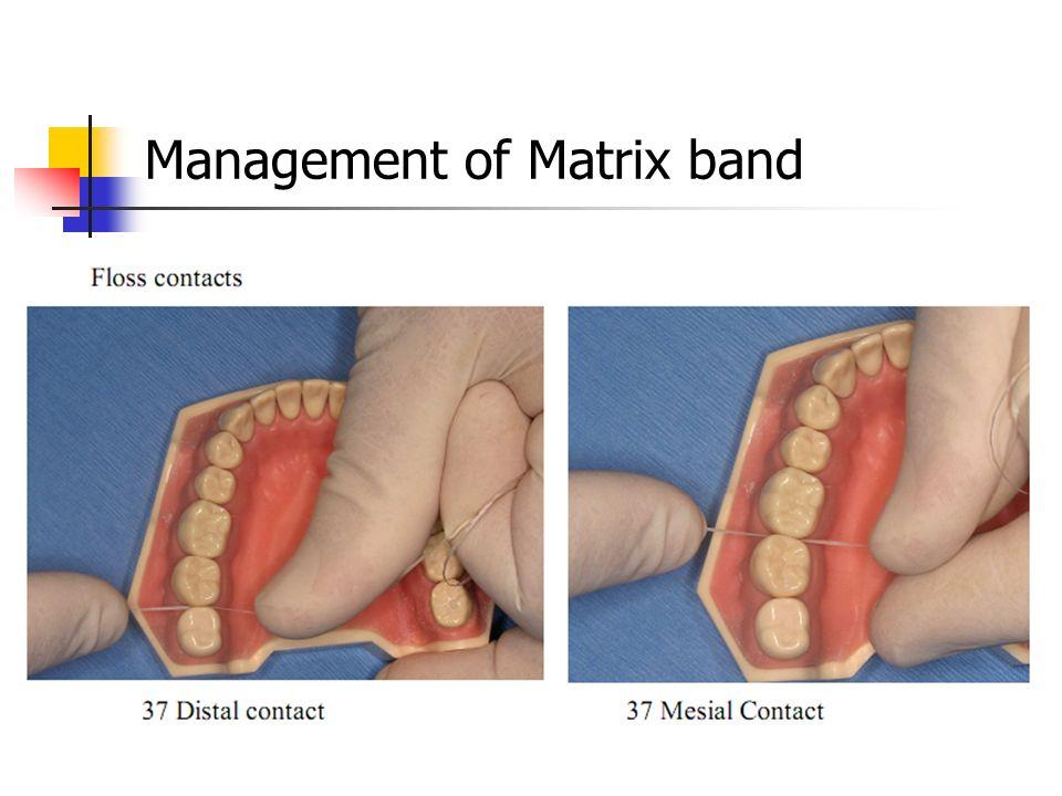 Management of Matrix band