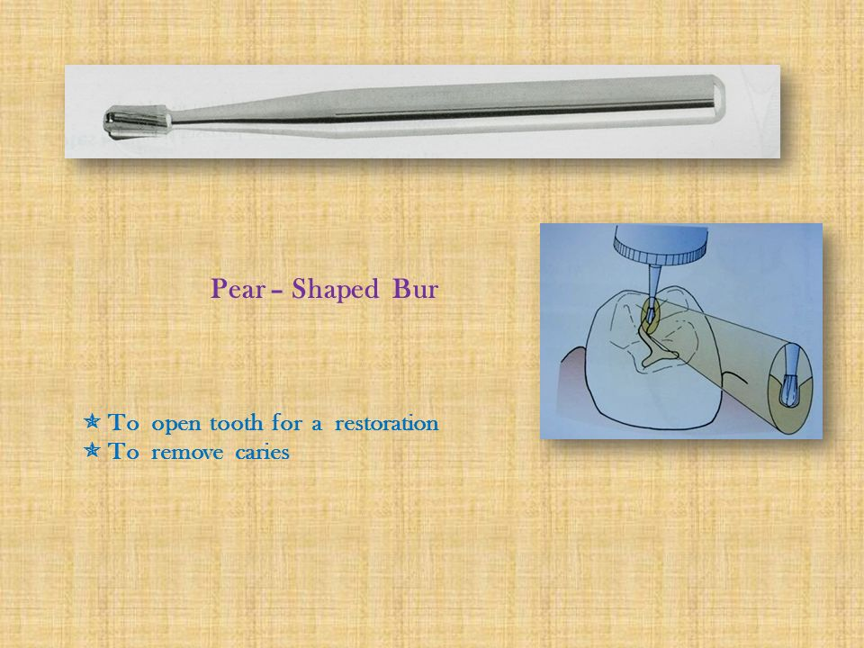 Pear – Shaped Bur  To open tooth for a restoration  To remove caries
