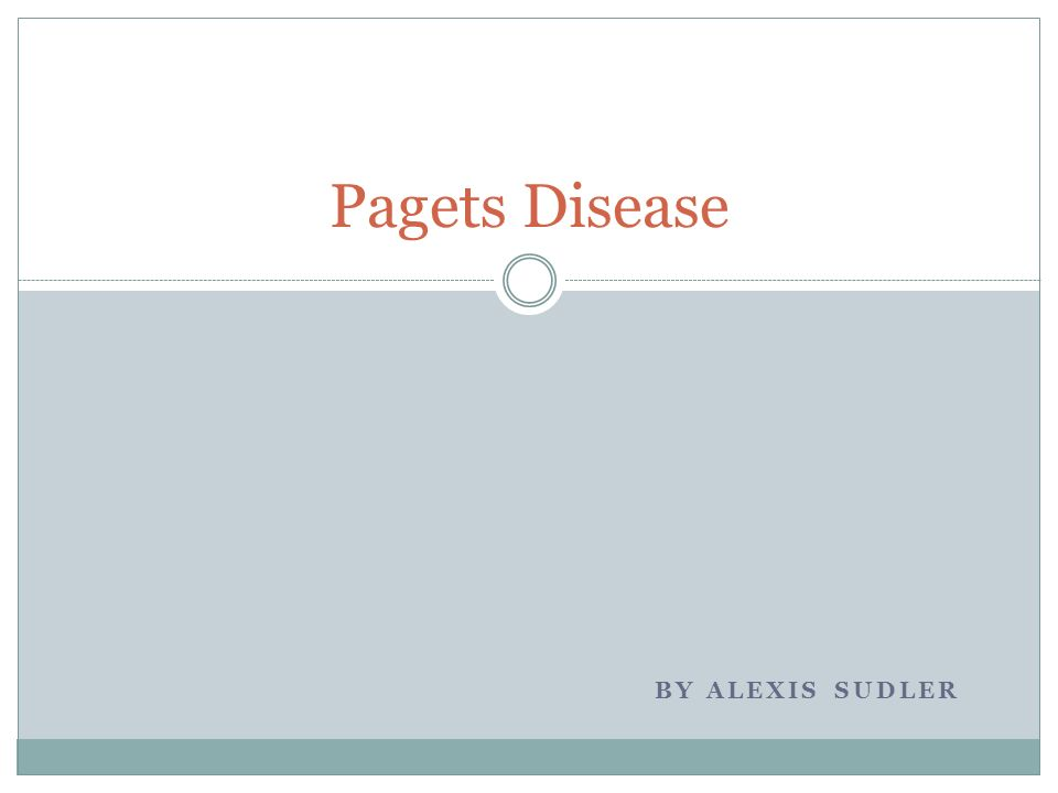 Pagets Disease by Alexis Sudler