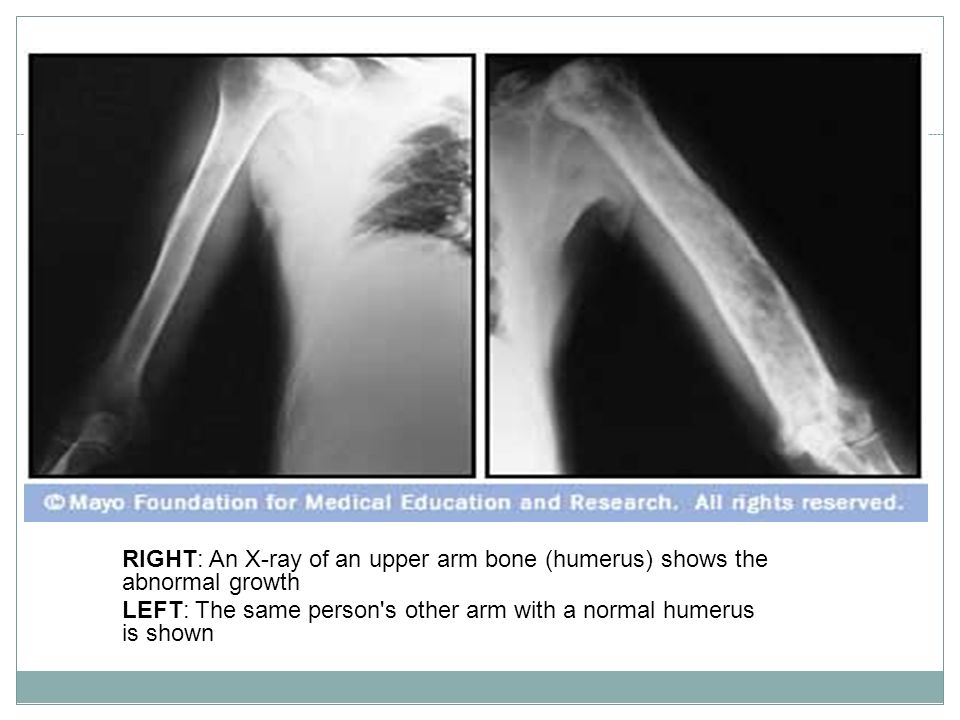 RIGHT: An X-ray of an upper arm bone (humerus) shows the abnormal growth