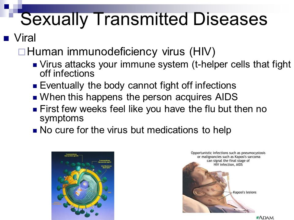sexually transmitted diseases are plaguing the Medical definition of sexually transmitted disease : any of various diseases or infections that can be transmitted by direct sexual contact including some (as syphilis, gonorrhea, chlamydia, and genital herpes) chiefly spread by sexual means and others (as hepatitis b and aids) often contracted by nonsexual means.
