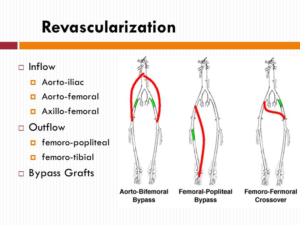 Aortobifemoral Bypass Anatomy 5204478 Follow4morefo