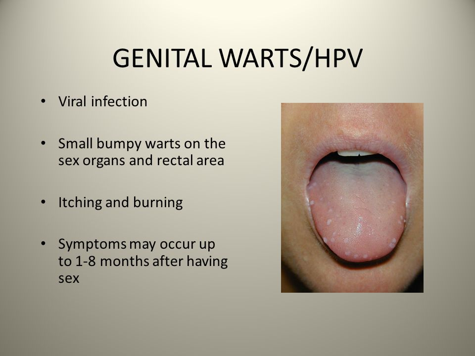 oral sex and vaginal irritation