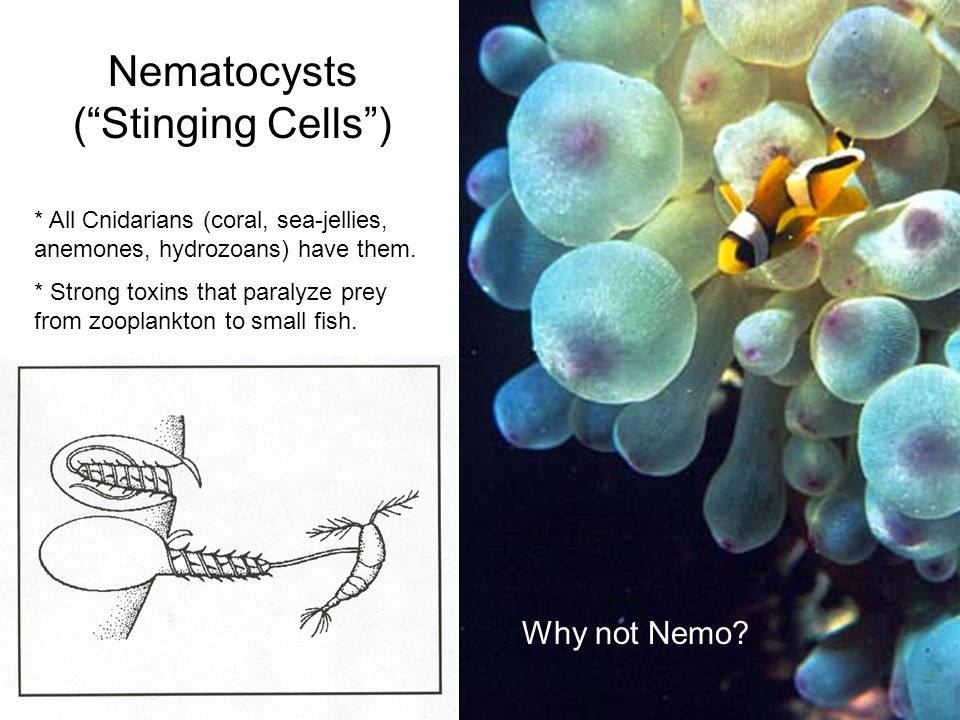 cnidaria and nematocysts Kingdom animalia: phyla porifera and cnidaria essential question(s): what are key characteristics to the animal kingdom objectives: 1 students will be able to.