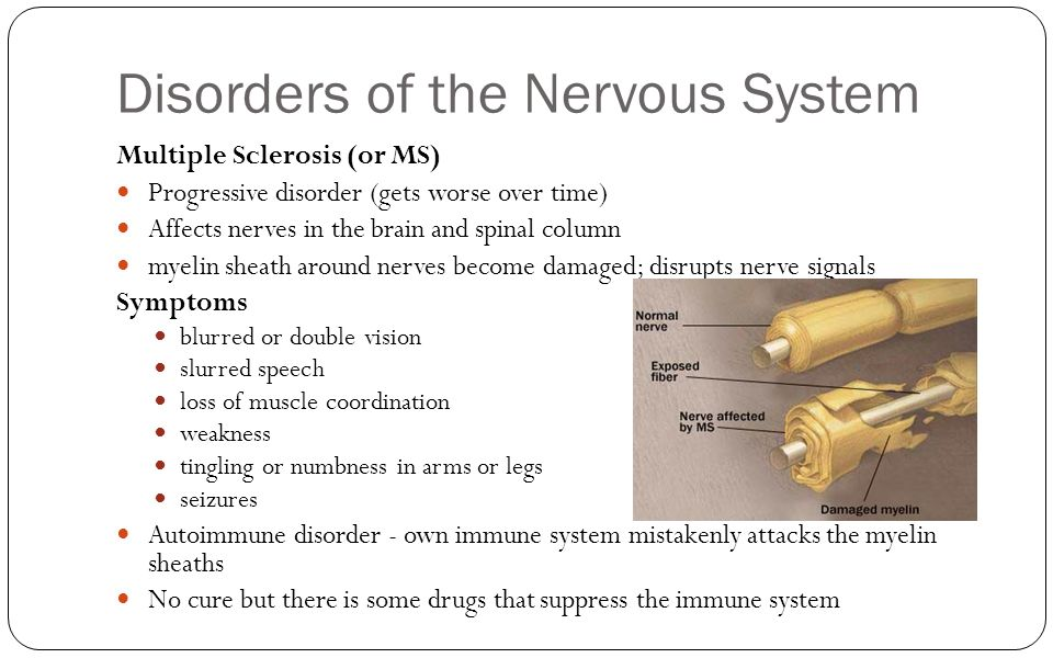 an overview of the disease of the nervous system multiple sclerosis Multiple sclerosis multiple sclerosis (ms) is defined as a chronic inflammatory disease of the central nervous system (cns), which results in sclerotic lesions in the brain that gradually lead to motor and sensory deficits.