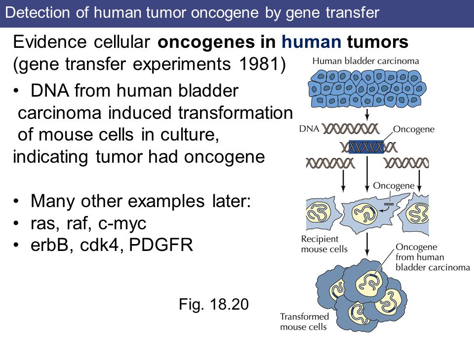 Detection of human tumor oncogene by gene transfer
