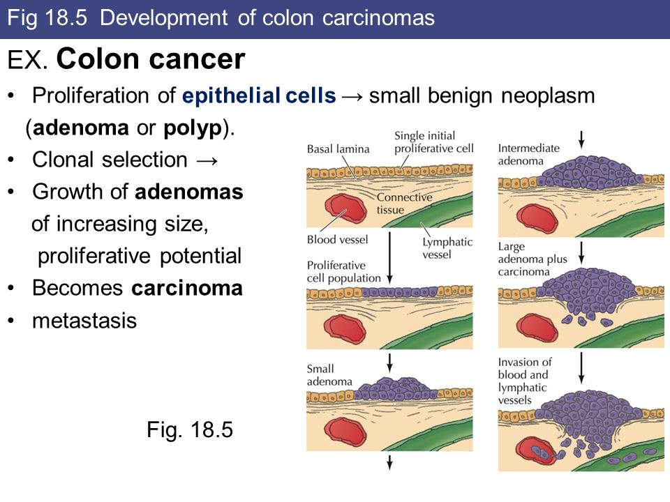 Fig 18.5 Development of colon carcinomas