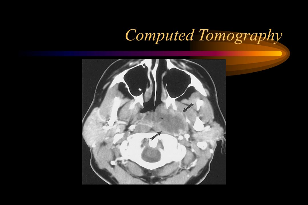 CT (Computed Tomography) Scan