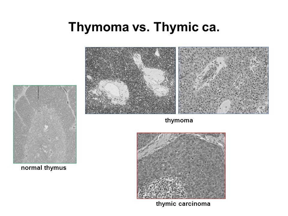 The Current Staging Systems of Thymoma - ppt video online ... | 960 x 720 jpeg 102kB