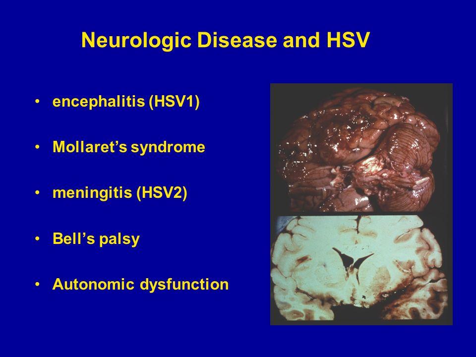 hsv encephalitis steroids