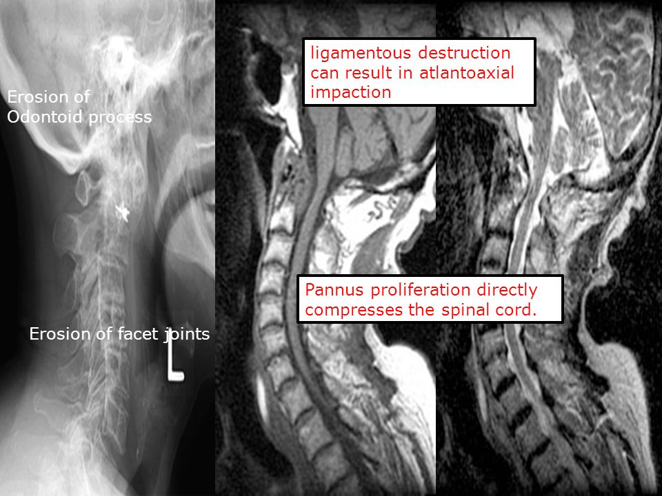 ligamentous destruction can result in atlantoaxial impaction