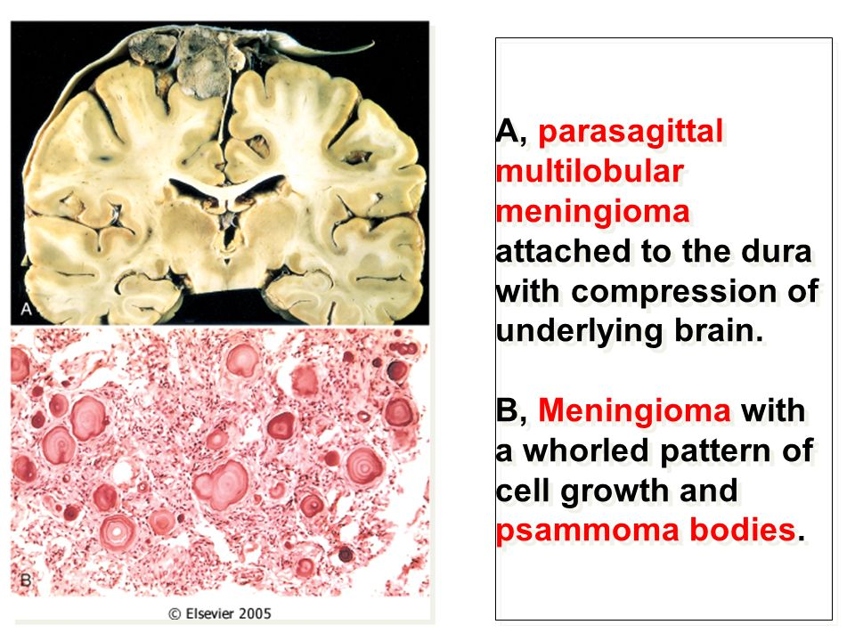 Cerebrum, Cerebellum and Brain Stem - ppt video online ...
