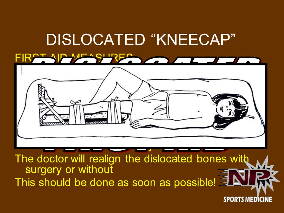 DISLOCATED KNEECAP DISLOCATED PATELLA FIRST-AID N P