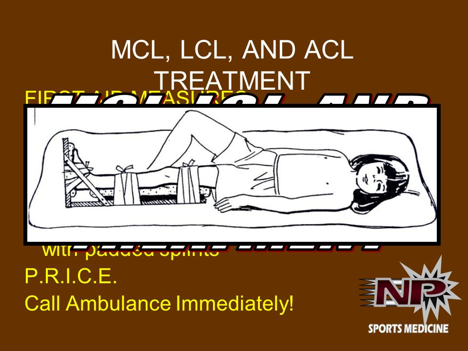 MCL, LCL, AND ACL TREATMENT