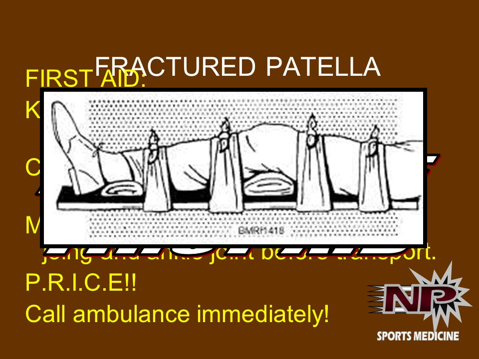 FRACTURED PATELLA FIRST AID: