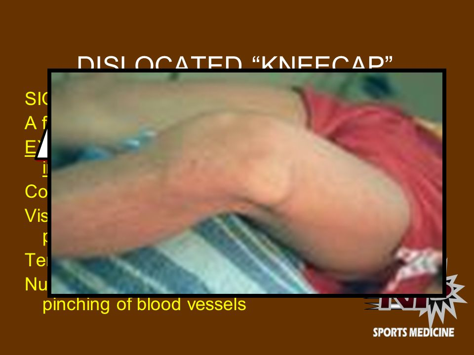 DISLOCATED KNEECAP DISLOCATED PATELLA N P SIGNS AND SYMPTOMS: