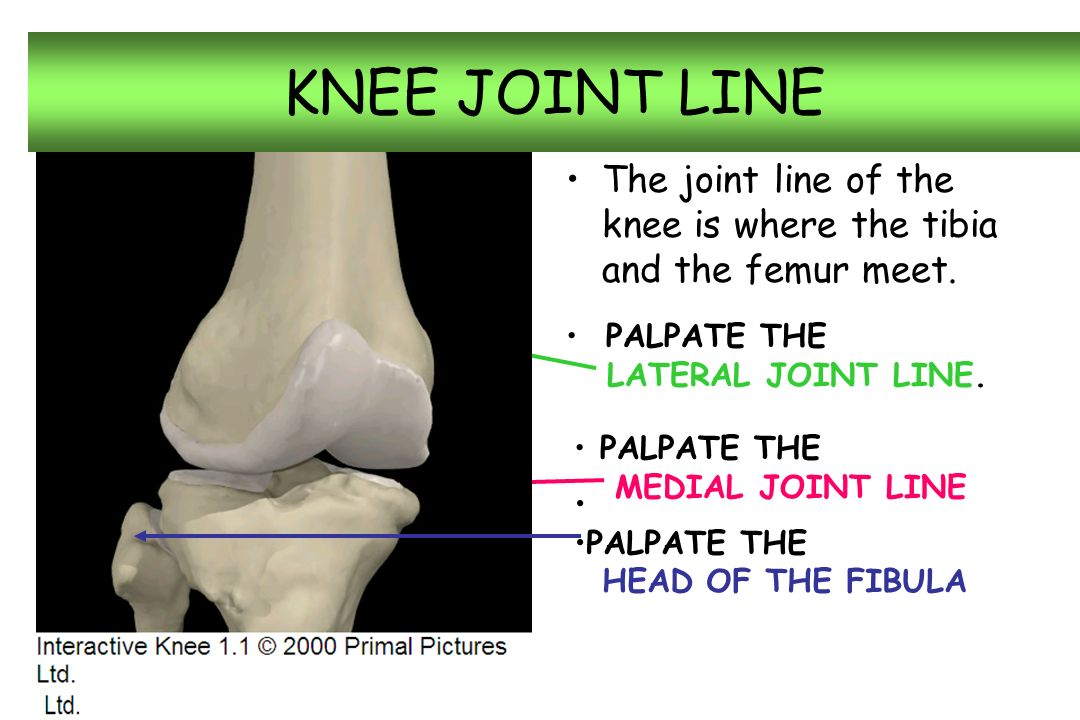 Knee anatomy rhs sports medicine ppt video online download 3 knee joint line ccuart Image collections
