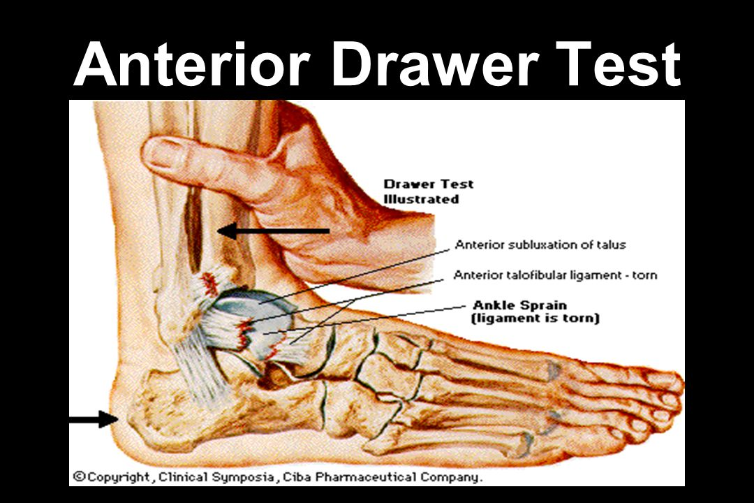 Image Result For Ankle Anterior Drawer Test