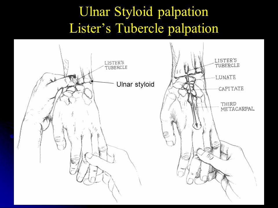 Ulnar Styloid Palpation Olivero