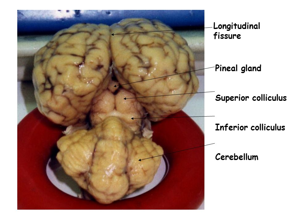 Longitudinal fissure Pineal gland Superior colliculus Inferior colliculus Cerebellum