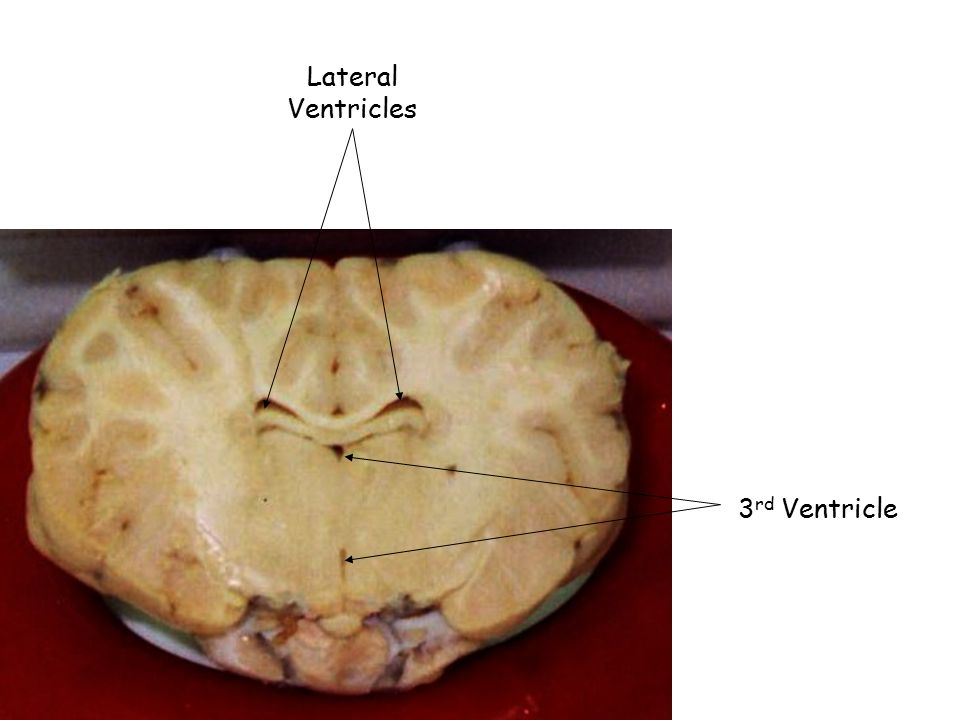 Lateral Ventricles 3rd Ventricle