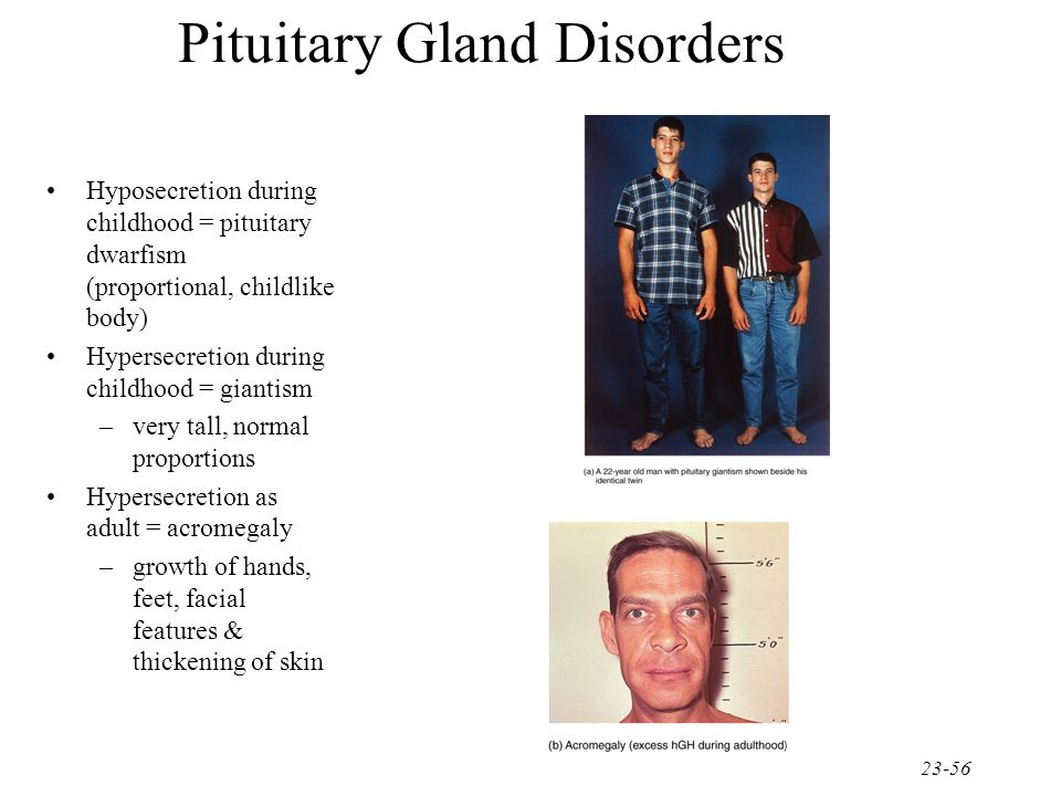 the pituitary gland and dwarfism essay Pituitary dwarfism occurs when the pituitary gland does not produce enough growth hormone this hormone plays a major role in growth of the skeleton and viscera if it is not produced in large enough quantities, growth of the trunk will be curtailed, and the head and limbs will be in normal proportion to the small torso.