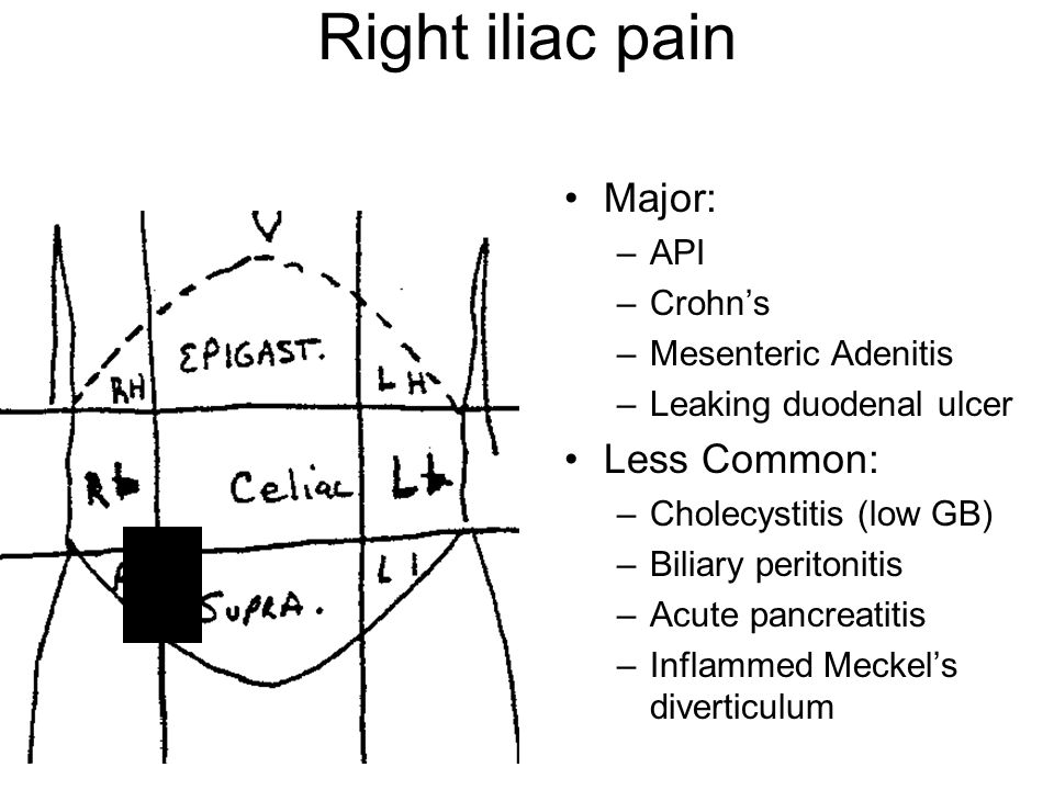 Kidney furthermore Kidney Pain Vs Lower Back Pain further I ytimg   vi pnjnkwedn2u 0 moreover Lower Abdominal Pain Location likewise 6354459. on flank pain