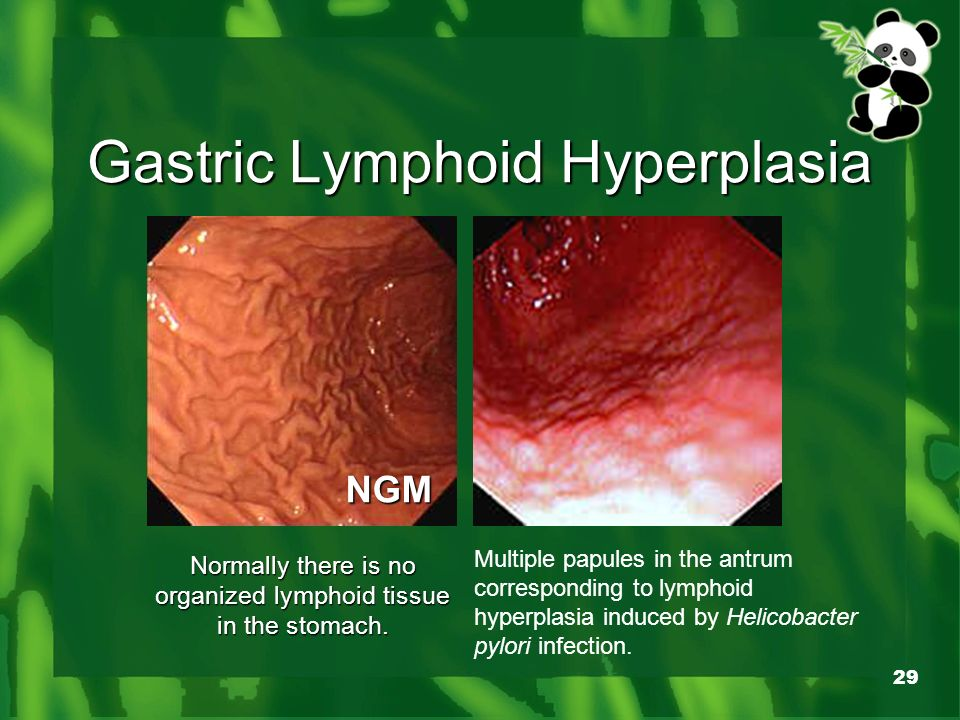 Gastritis Treatment In Hindi