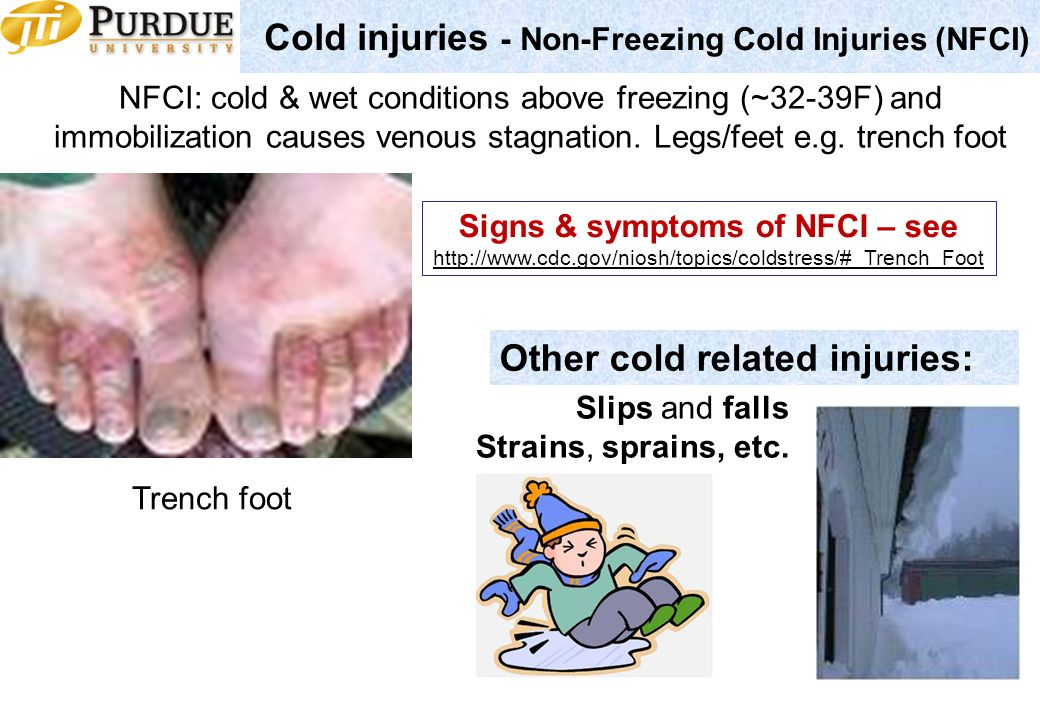 symptoms consequences and treatment when people are exposed to the cold What are the symptoms of the flu  a lot of people will take that to mean a  but have different symptoms with a cold you will have symptoms such as a runny.