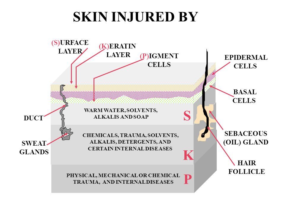 SKIN INJURED BY S K P (S)URFACE LAYER (K)ERATIN LAYER (P)IGMENT