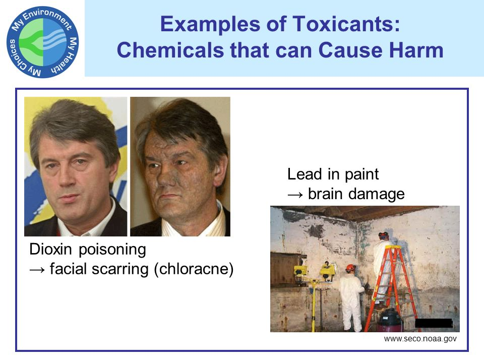 Can Lead Paint Cause Brain Damage In Adults