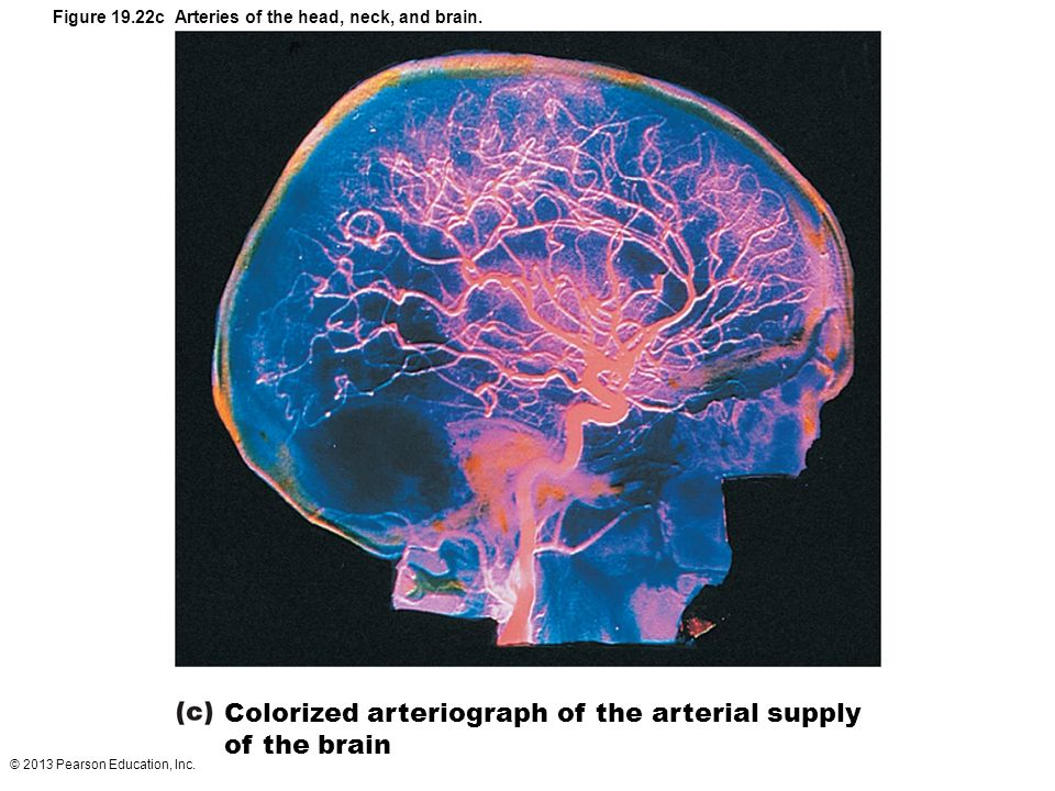 Colorized arteriograph of the arterial supply of the brain