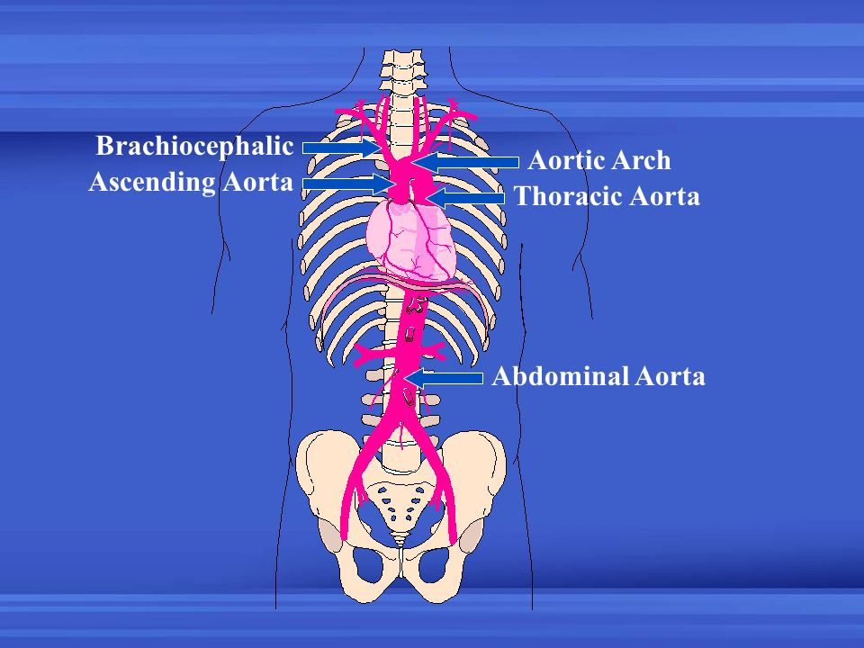 Brachiocephalic Aortic Arch Ascending Aorta Thoracic Aorta