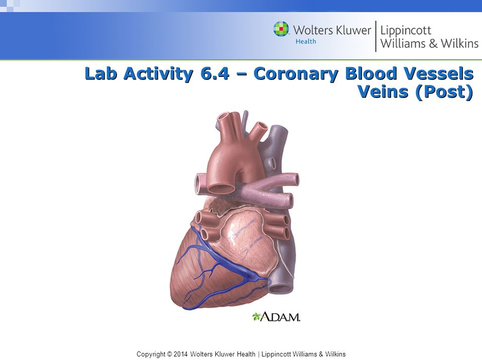 Lab Activity 6.4 – Coronary Blood Vessels Veins (Post)
