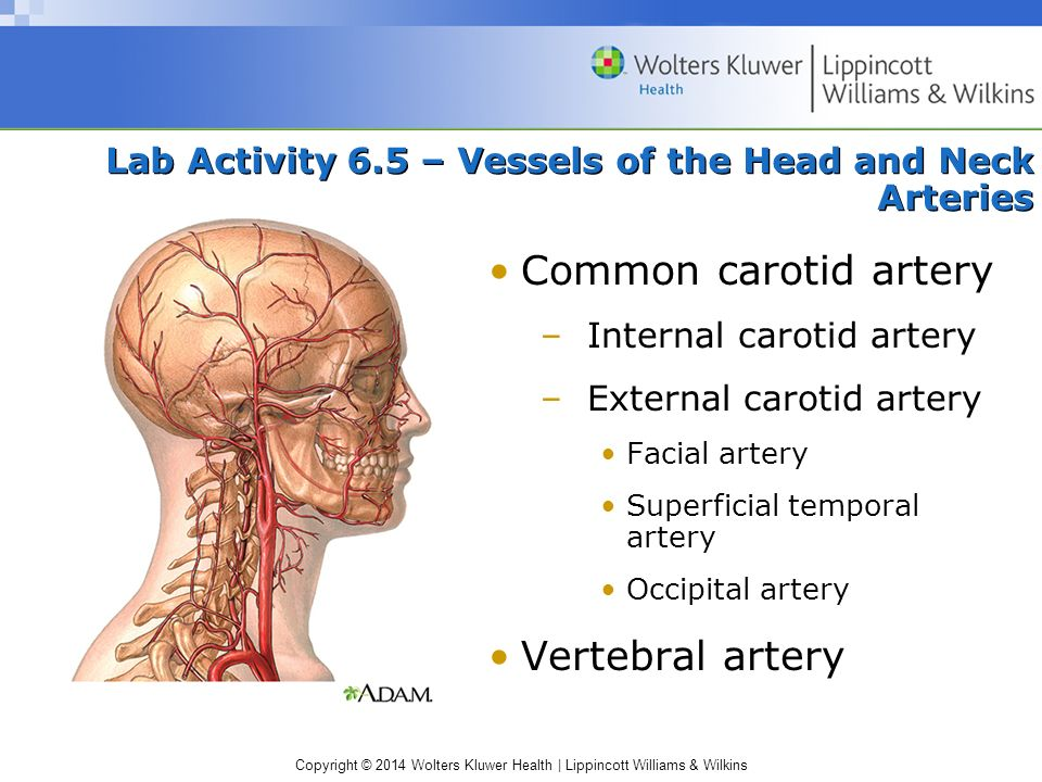 Lab Activity 6.5 – Vessels of the Head and Neck Arteries