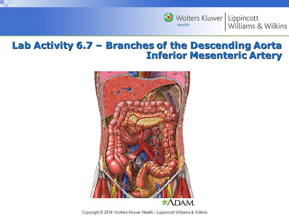 Lab Activity 6.7 – Branches of the Descending Aorta Inferior Mesenteric Artery