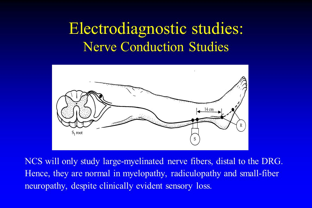 Electromyography (EMG) and Nerve Conduction Studies (NCS)