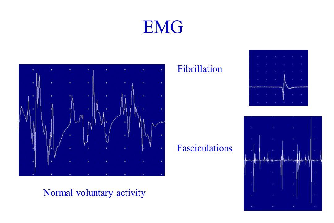 Introduction To Electrodiagnostic Testing Emg Ncs Ppt